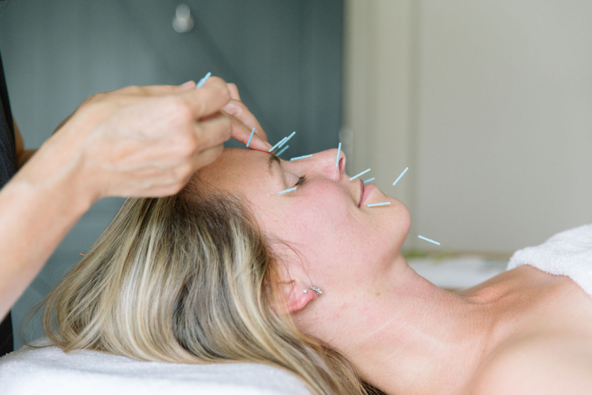Have little will facial acupuncture help acne the